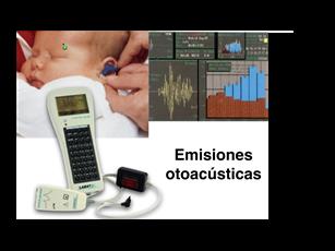 Emisiones otoacústicas