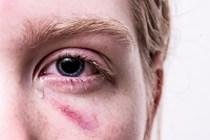 No se puede dudar de la declaración de la víctima de maltrato, aunque se retrase en denunciar.